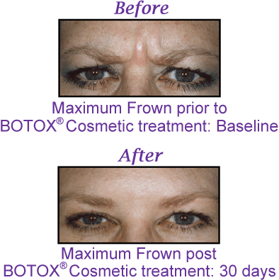 Perfectly You > Non-Invasive Medical Cosmetic Enhancement